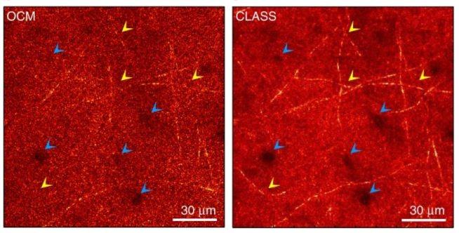 изображение вновь разработанного микроскопа - структура мозга лабораторных мышей