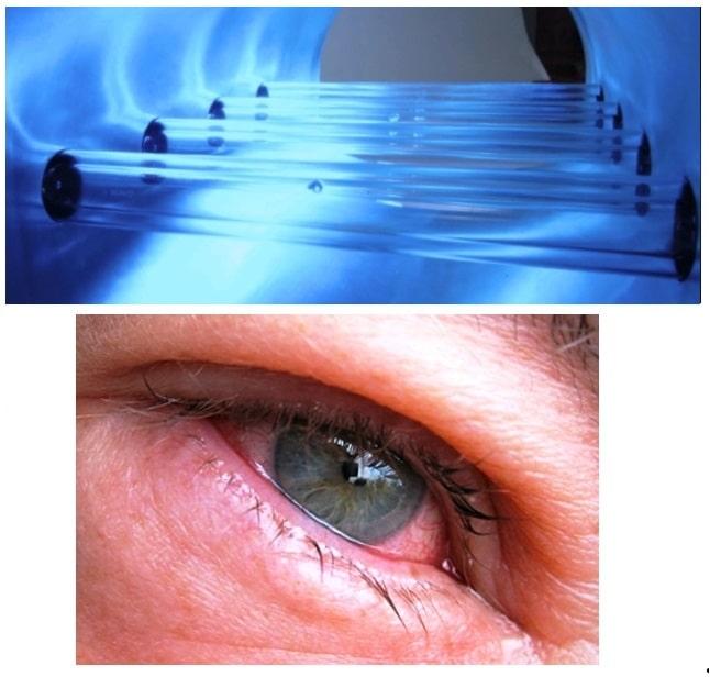 болезни глаз от неправильного смотрения на ультрафиолетовые облучатели